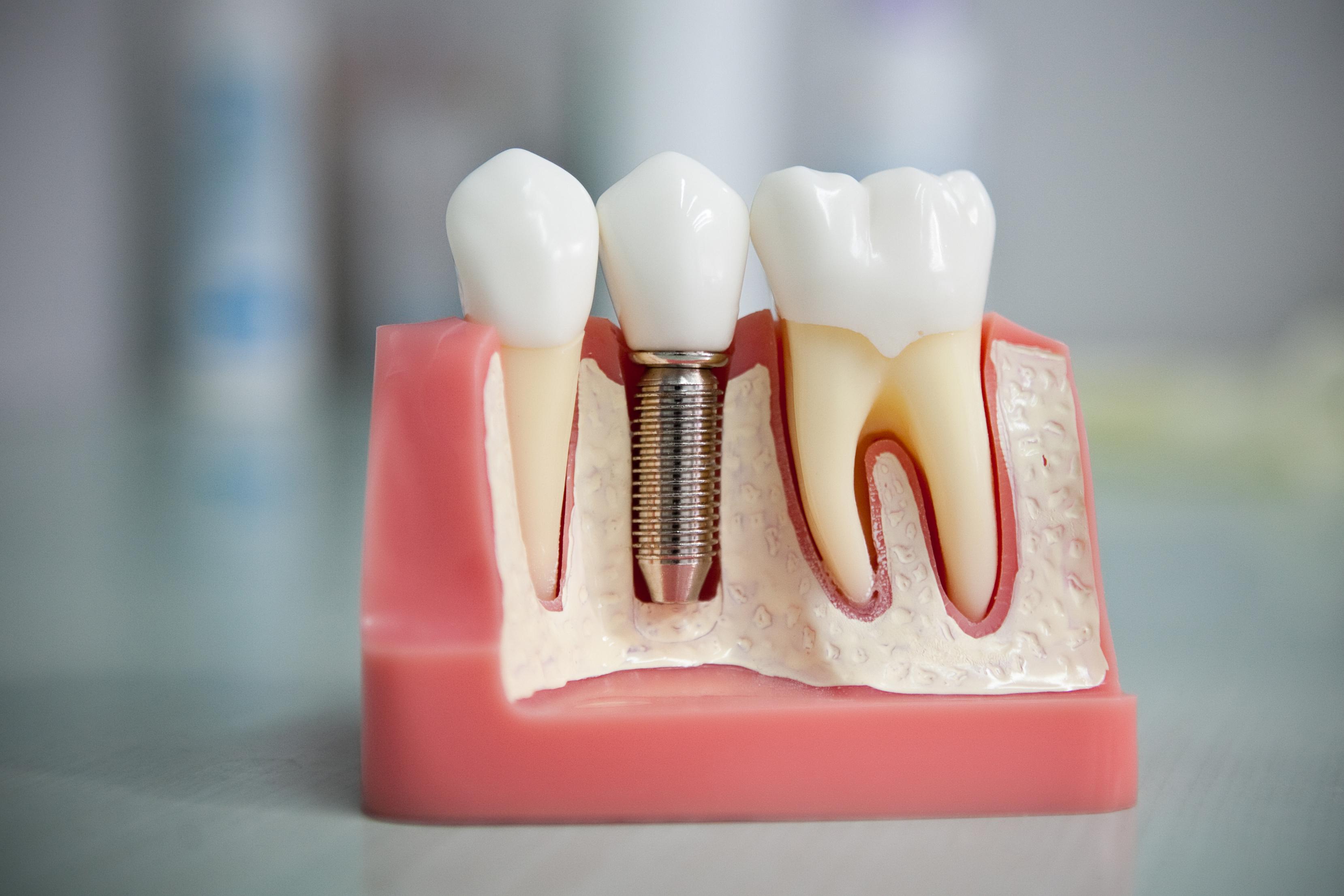 Имплантация зубов в Красноярске